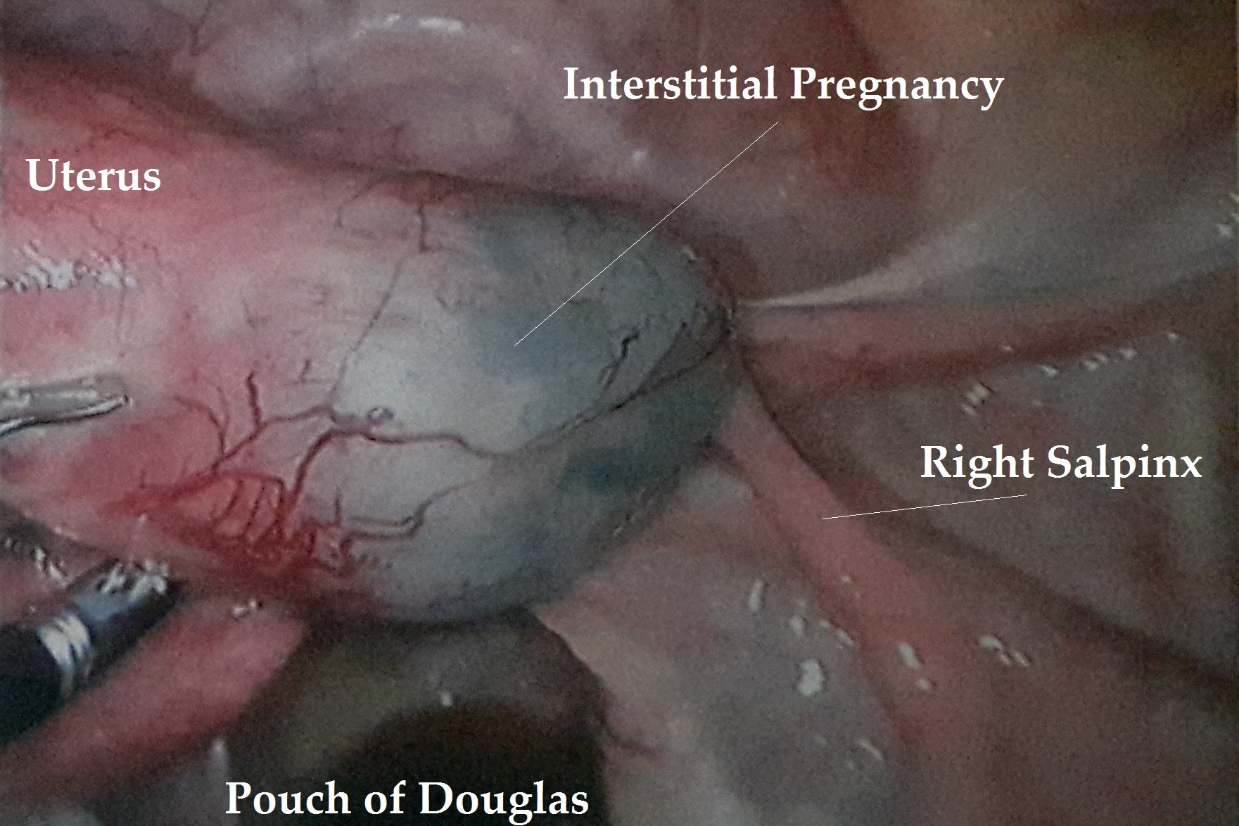 Interstitial Pregnancy Operation