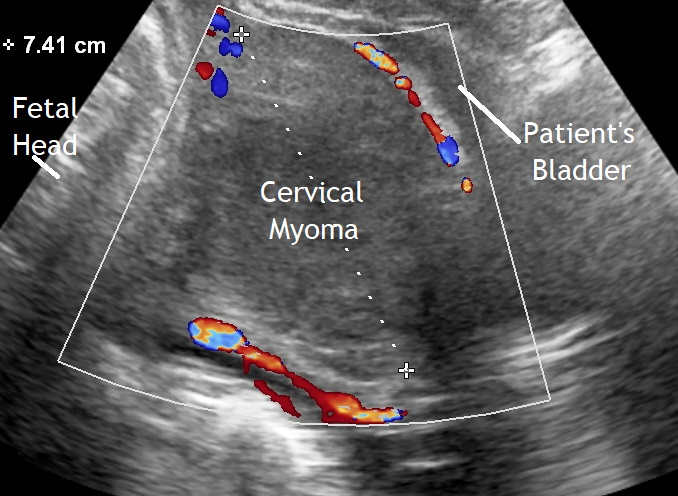 Cervical Myoma in 3rd Trimester
