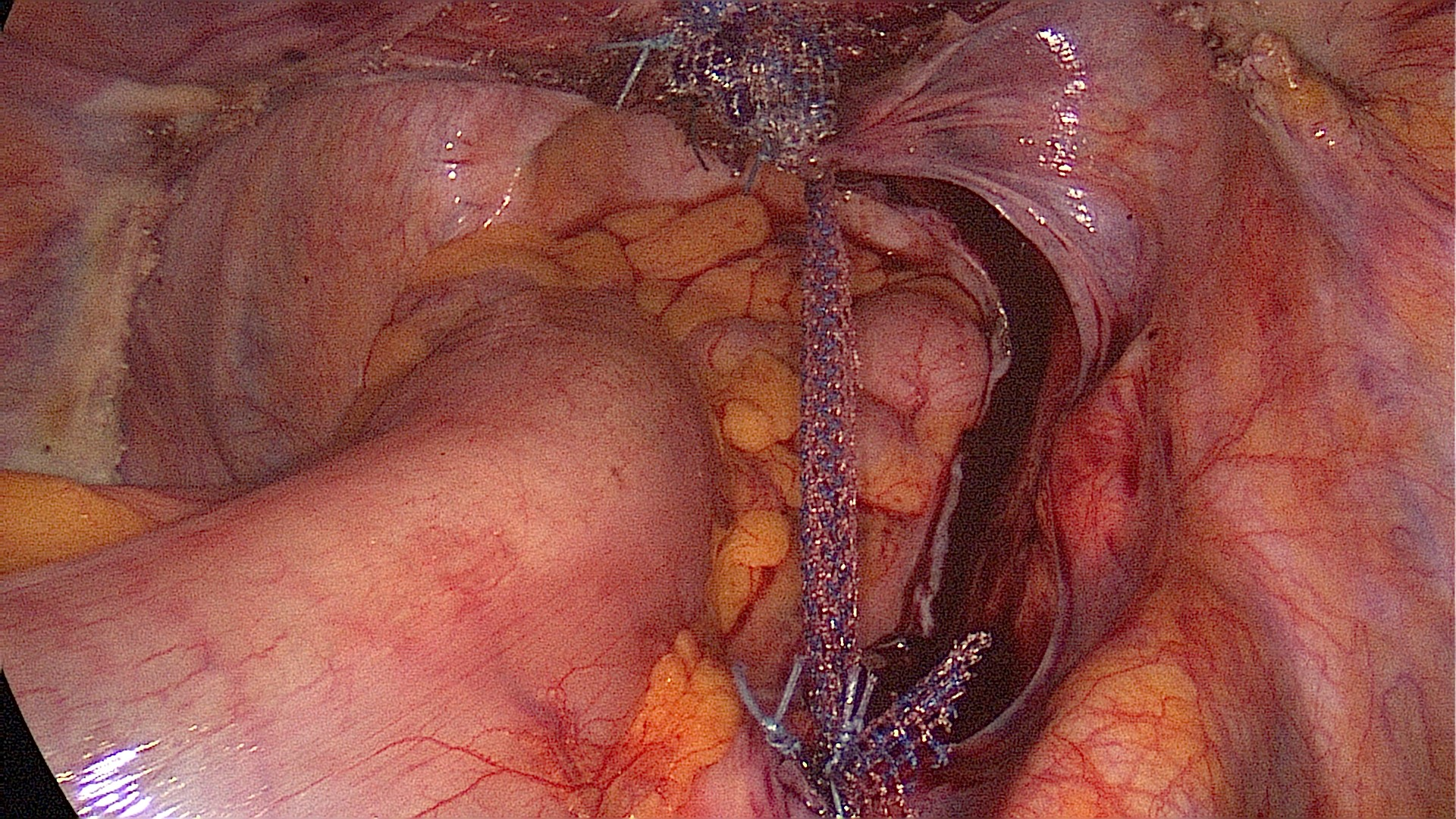 laparoscopic sacrocervicopexy