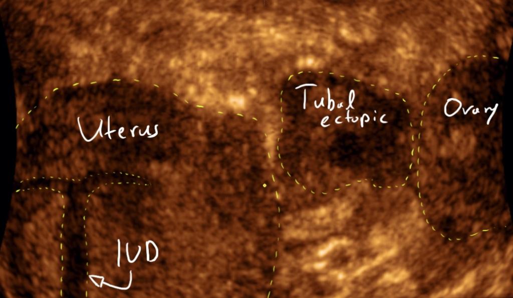 tubal ectopic pregnancy 3d